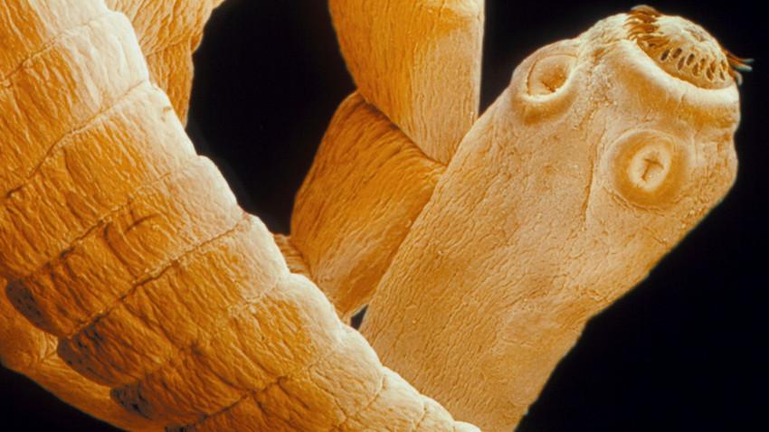 Pasożyty objawy, czyli co zdradzi robaka?